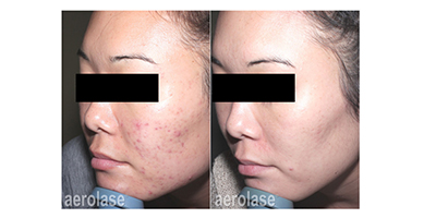 Aerolase Laser Acne Treatment